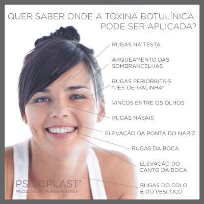 post-botox
